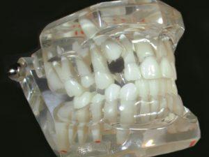 General Dental Models